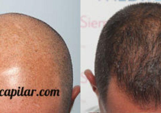 injerto capilar en alopecia avanzada